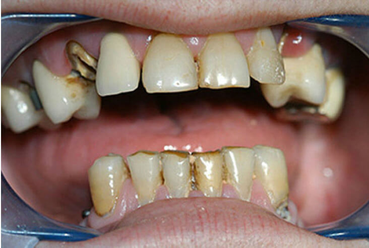 g-corone-dentali-2