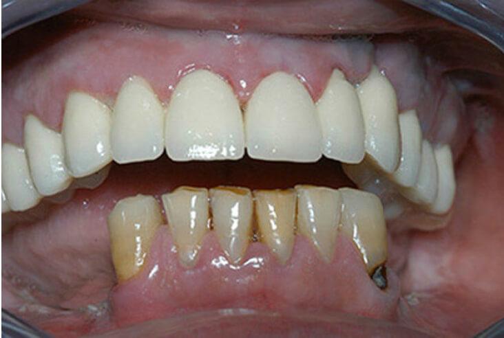 g-corone-dentali-3